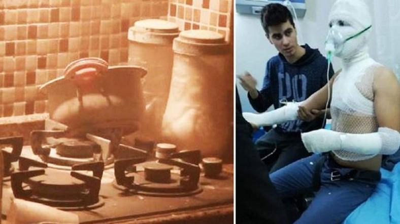 Deney Yaparken Mutfağı Havaya Uçuran Türk Lise Öğrencilerinden Biri Ağır Yaralandı (Video)