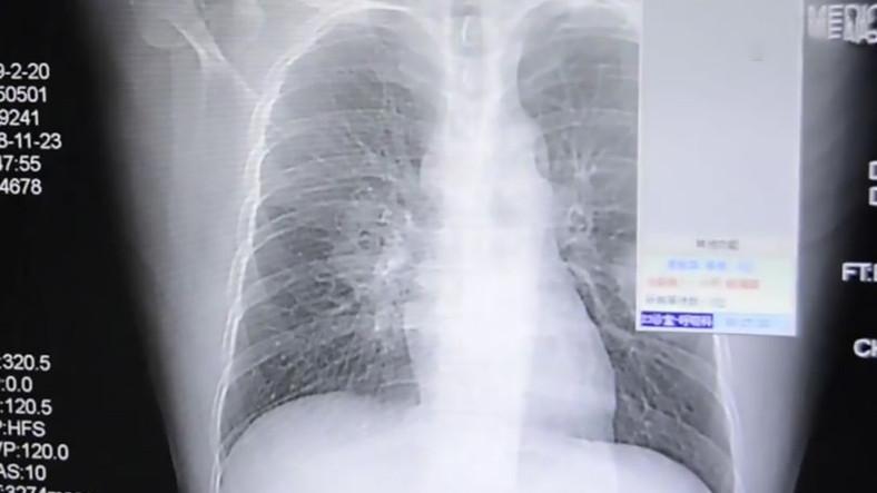 Her Gün Çoraplarını Koklayan Çinli Adamın Akciğerlerinde Mantar Oluştu