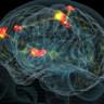 Beyinlerimiz 'Parmak İzi' Gibi Eşsiz İzlere Sahip