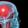 'Mikrodalga Kask' ile Hastaneye Gitmeden Beyin Hasarı Tespit Edilebilecek