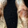 Bir Bisikletçinin Bisiklet Turuna Katıldıktan Sonra Bacaklarının Aldığı Korkunç Görüntü
