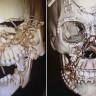 Bir Tıp Mucizesi: Doktorlar, Parçalanmış Kafatasını Düzeltip Hastayı Hayatta Tuttular