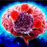 Beyin Kanserinin Gelişiminden Sorumlu Protein Engellendi!