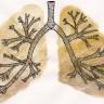 Bilim İnsanları Akciğer Kanserinin Oluşumunda Önemli Veriler Elde Ettiler