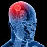 Beyin Kanserinin Sonunu Getirecek Beklenmedik Panzehir: Çocuk Felci Virüsü