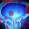 Prostat Kanserine Sahip Hastalar, Yeni Geliştirilen Kan Testi Sayesinde Kemoterapiden Kurtulabilir