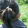 3 Yaşındaki Çocukta, İnsanlarda Hiç Görülmemiş Bir Genetik Mutasyon Keşfedildi
