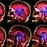 Bilim İnsanları, Mutsuzluğun Beyinde Nasıl Göründüğünü Tespit Etti