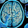 İnsan Beyninde Daha Önce Bilinmeyen Yeni Bir Kısım Keşfedildi