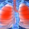 Bu Ücretsiz Yapay Zeka, Röntgen Filmlerini Doktorlar Kadar İyi Okuyabiliyor