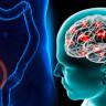 Apandisit Ameliyatı Geçirenler, Parkinson'a 3 Kat Daha Kolay Yakalanıyor