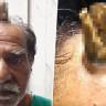 Bir Adamın Kafasında, Başını Çarptıktan 5 Yıl Sonra 'Boynuz' Çıktı