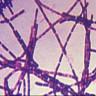 Pentagon Yanlışlıkla Laboratuvarlara Canlı Şarbon Bakterisi Gönderdi