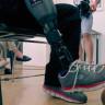 Bacağını Kaybeden Adama Hissedilebilir Protez Takıldı