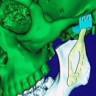 Avustralya'da 3D Yazıcı İle Titanyum Çene Üretildi